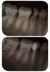 dévitaliser-dent