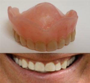 dentier-prothèse-dentaire-complete-sourire