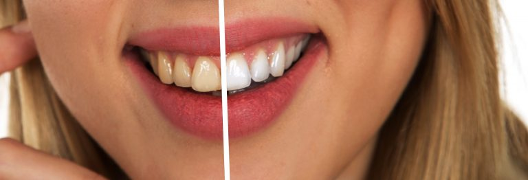 dents-blanches-jolie-sourire