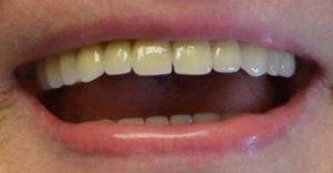 sourire-patiente-Dr-Garnier-dentiste-kremlin-Bicetre-avec-prothèse-dentaire-sur-implants