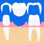 qu'est-ce-qu'un-bridge-dentaire
