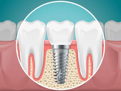 qu'est-ce-qu'un-implant-dentaire